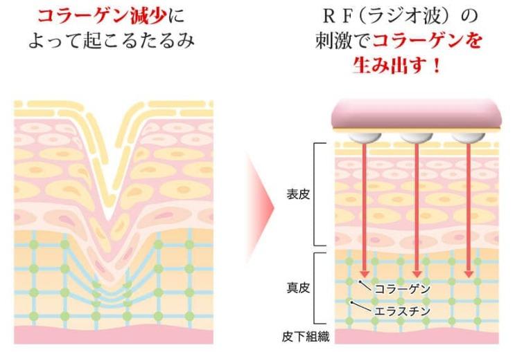 ラジオ波は、肌の奥にあるコラーゲンに刺激を与えて、新しいコラーゲンを生み出すサポートをしてくれます。