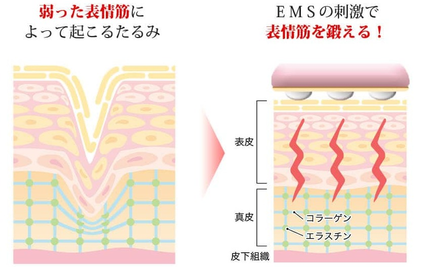 EMS機能の効果