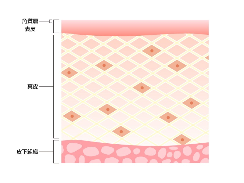 美容整形クリニックの「ヒアルロン酸注射」と「ヒアルロン酸マイクロニードルパッチ」の違い