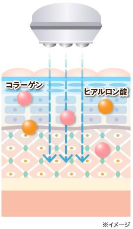 「セルキュア4Tプラス」のエレクトロポレーション機能をわかりやすく表したイラスト。