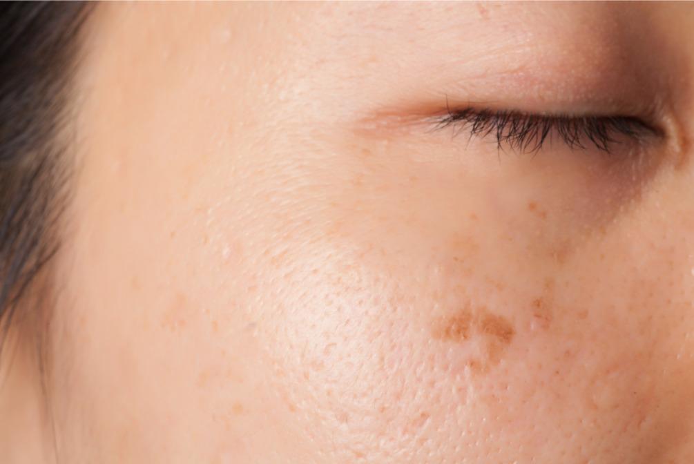 お肌に摩擦を与えると、シミの原因となるメラニンが大量に生成されてしまう。